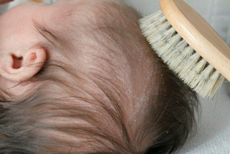 Eczema in infants