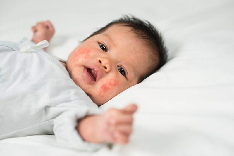 Newborn Rashes 5